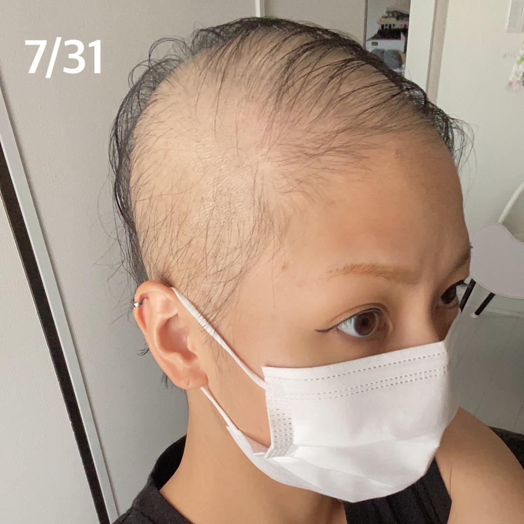 【悲報】28歳女性、モデルナワクチン1回目を職域接種後尋常じゃないスピードでハゲる